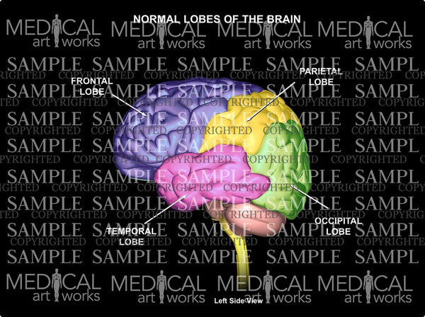 Normal lobes of the Brain