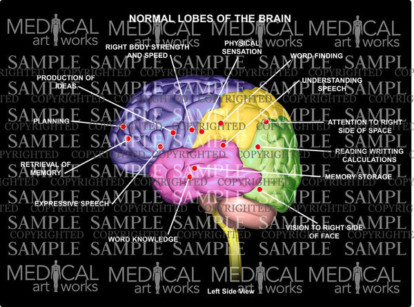 Normal 4 lobes of the Brain