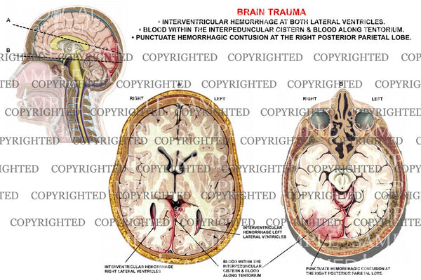 Brain trauma-interventricular hemorrahge