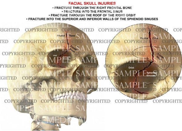 Facial skull injuries