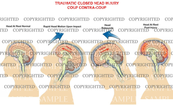 Traumatic closed head - mechanism of injury