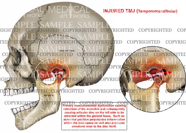 Temporomandibular Joint Injury1