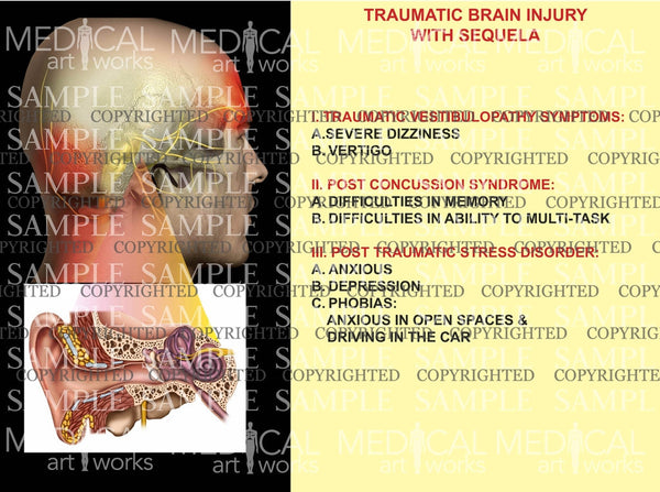 Traumatic Brain Injury with sequela