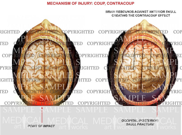 Mechanism of coup, contracoup injury