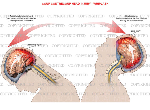 Mechanism of coup, contrecoup head injury - Whiplash