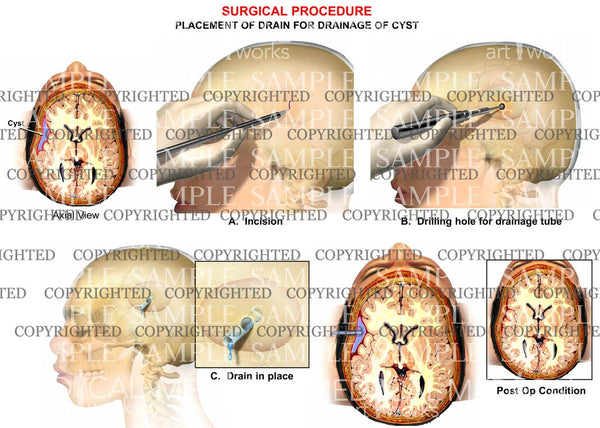 Brain cyst drainage procedure