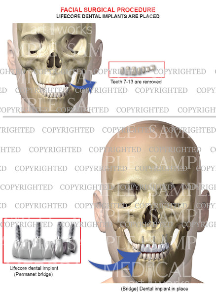 Oral maxilla-facial surgery with lifecore implants