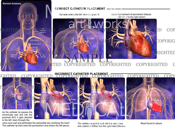Correct Catheter Placement and Incorrect Catheter Placement