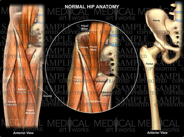 Normal hip anatomy - anterior view