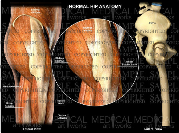 Normal Hip Anatomy Lateral view
