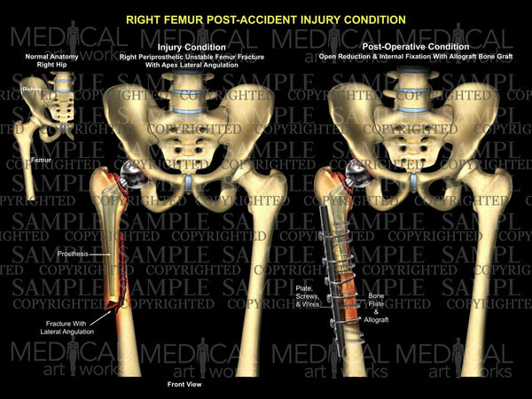 Right Femur Post-Accident injury Condition