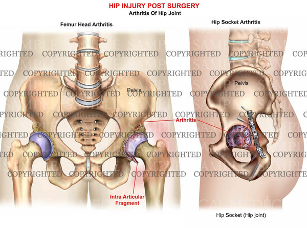 Hip post-op acetabulaum arthritis