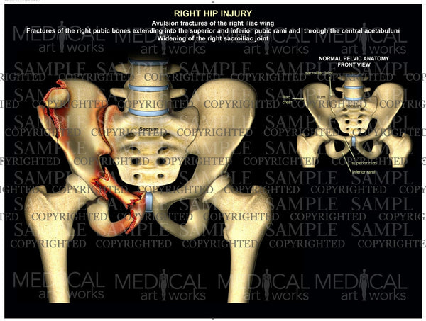 Right pelvis injury