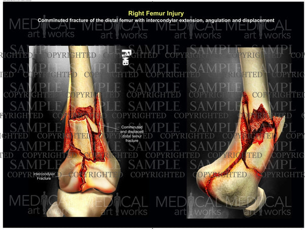 Right femur injury / fracture