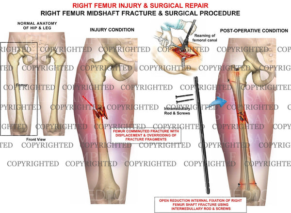 Right femur injury & surgery