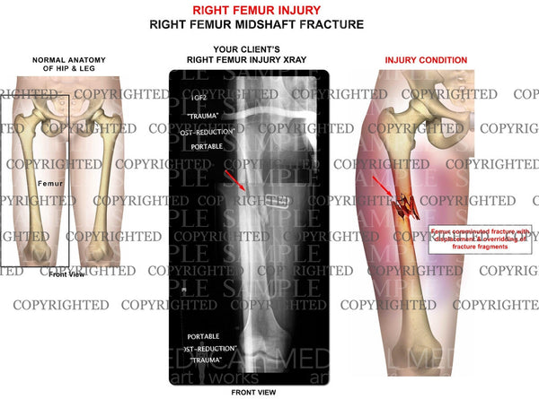 Right femur injury with x-ray