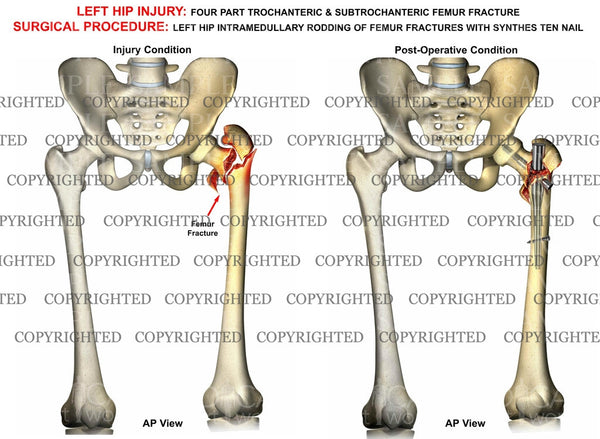Left femur 4 part intertrochanteric fracture