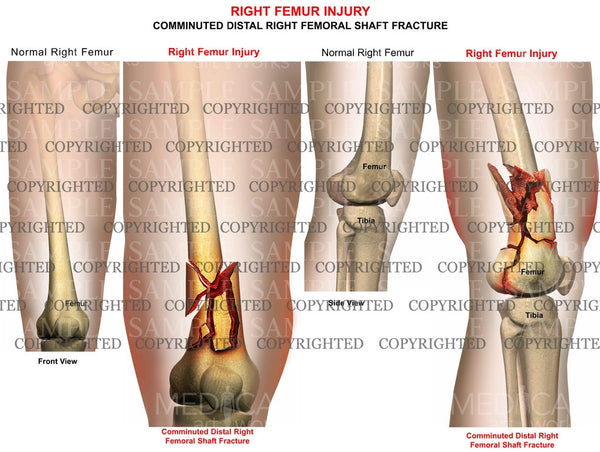 Right Femur injury fracture