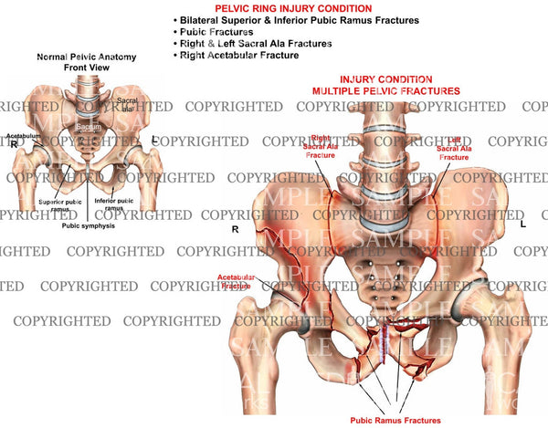PELVIC RING Injury condition 2