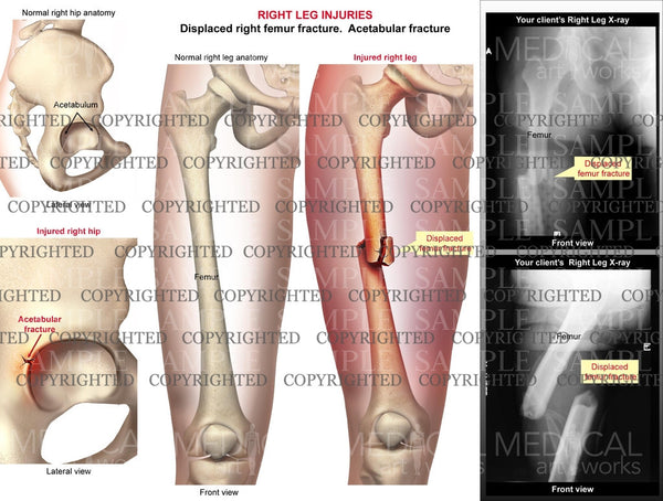 Right femur shaft fracture