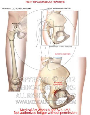 Right hip acetabular fracture