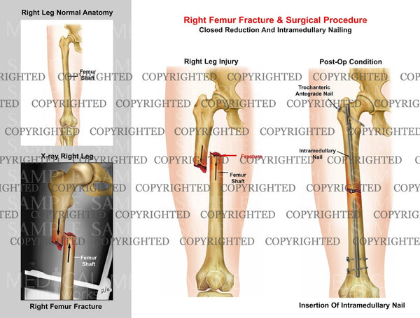 Right femur mid shaft fracture & Intramedullary nailing