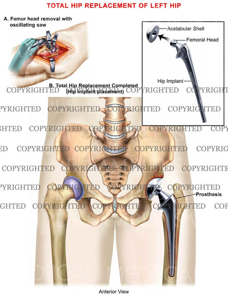 Total Hip Replacement of left hip