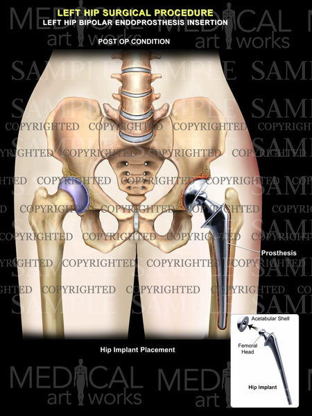 Left total hip surgical procedure