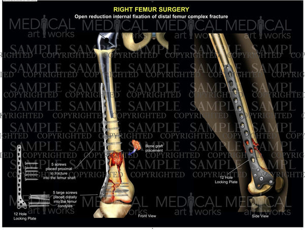 Right leg surgical procedure