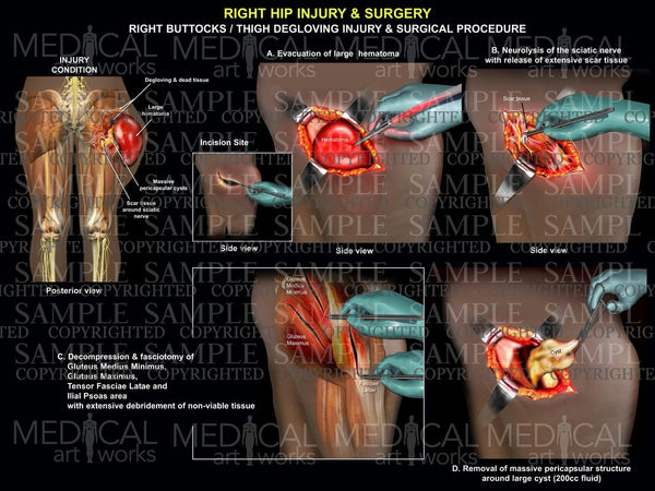 Right Buttocks / Thigh degloving injury & Surgical procedure