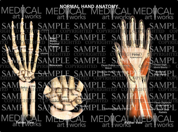 Normal hand wrist anatomy - palmar view