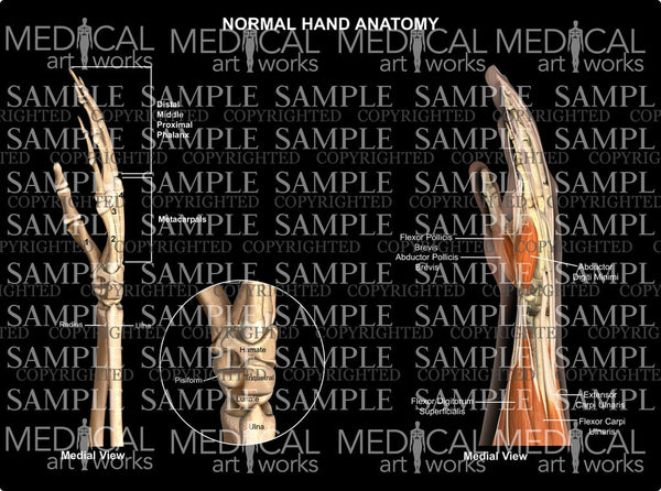 Normal hand wrist anatomy - medial view