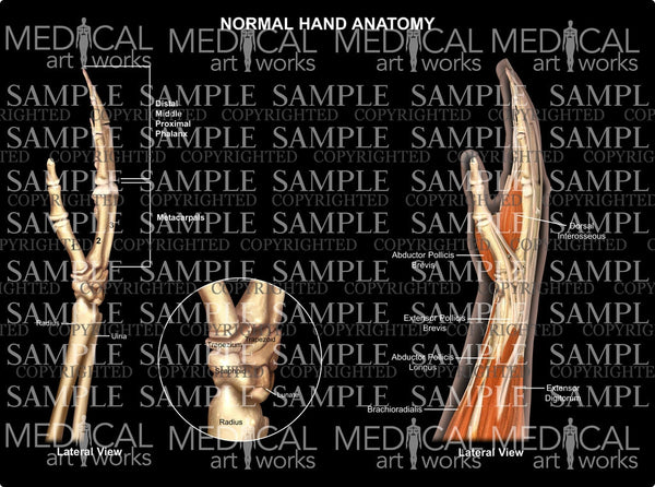 Normal hand wrist anatomy - lateral view