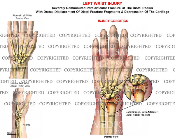 Left radius comminuted displaced fracture