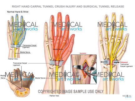 Right wrist carpal tunnel and surgical release
