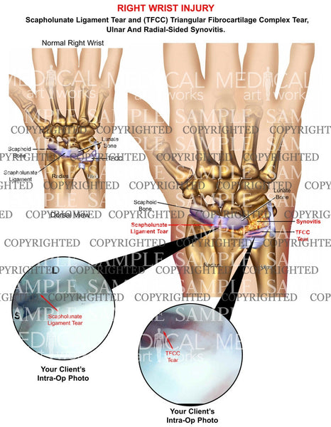 Right wrist TFCC & ligament tear