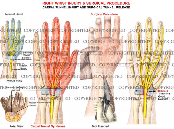 Carpal tunnel injury and surgical Tunnel release