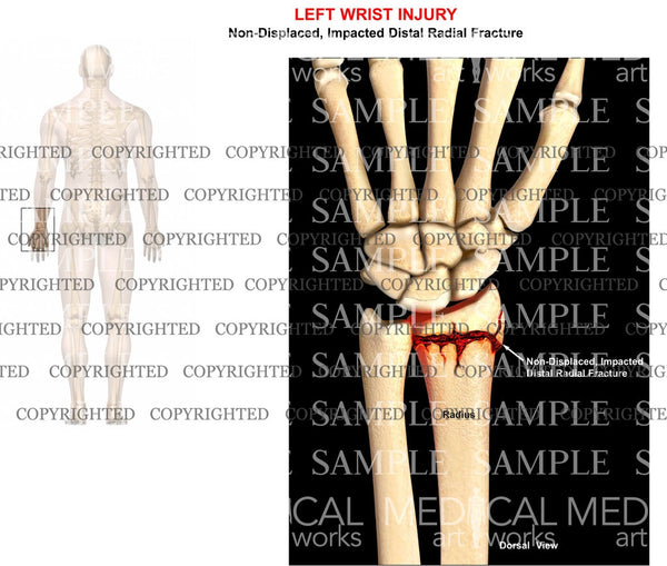 Left distal radial fracture