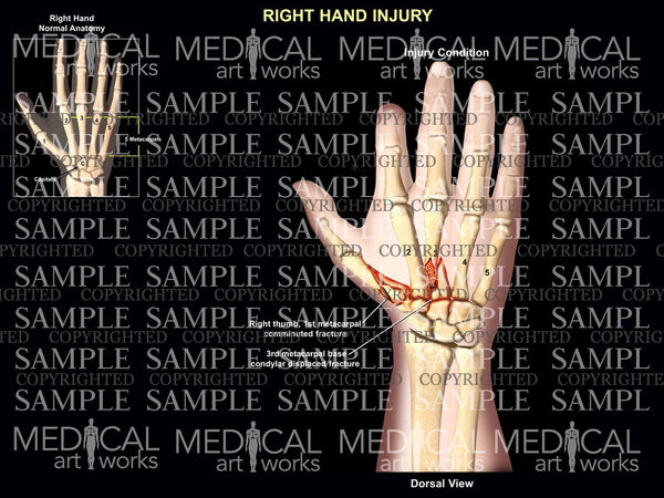 Right metacarpal fractures