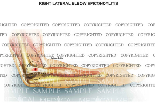 Right elbow epicondylitis