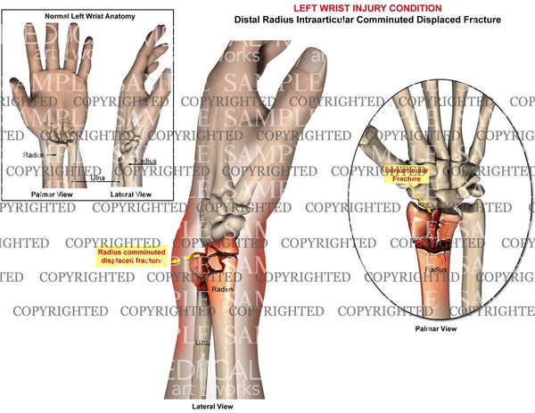 Left intraarticular radial fracture