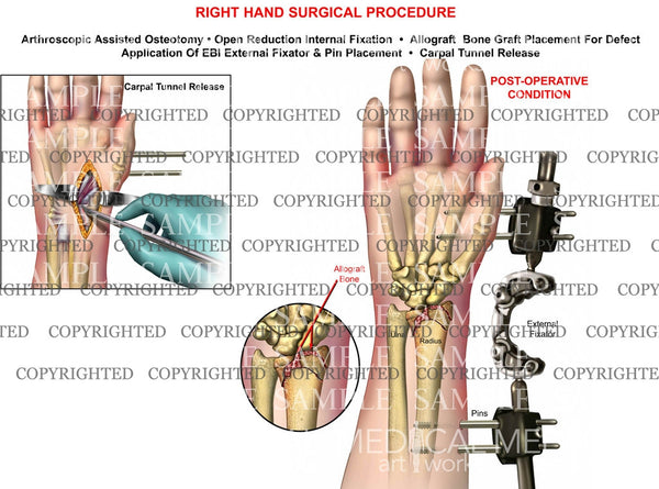 Right wrist osteotomy, graft, pin, EBI, ORIF