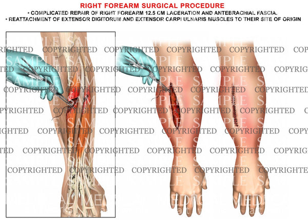 Right forearm extensor reattachment