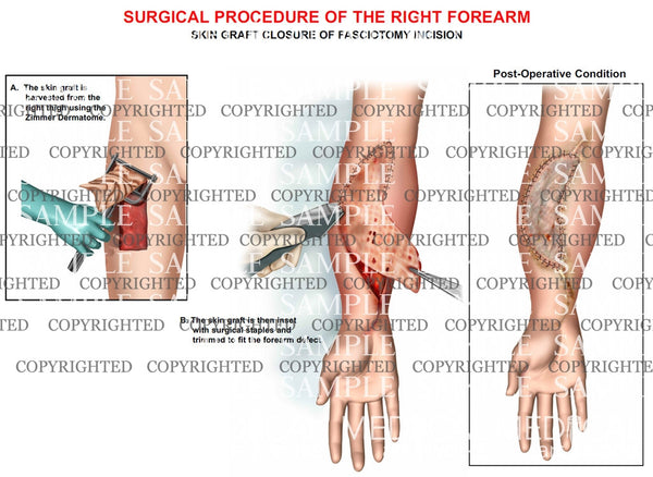 Right forearm skin grafting