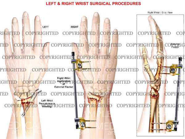 Wrist fracture pinning and external fixation