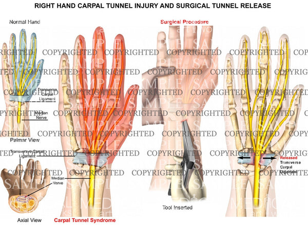 Right carpal tunnel release