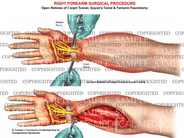 Forearm compartment syndrome fasciotomy