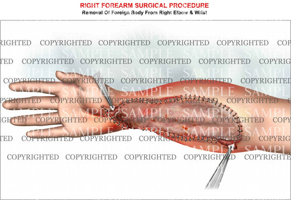 Forearm grafting procedure
