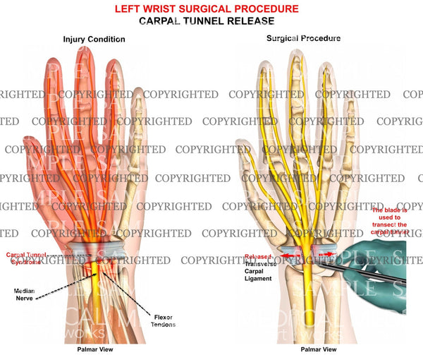Left carpal tunnel release