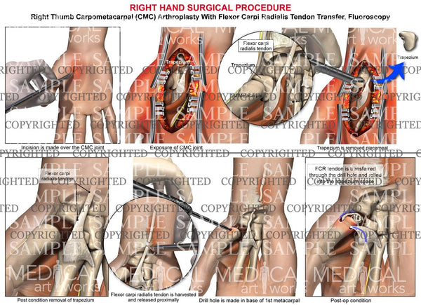 Right hand surgical procedure